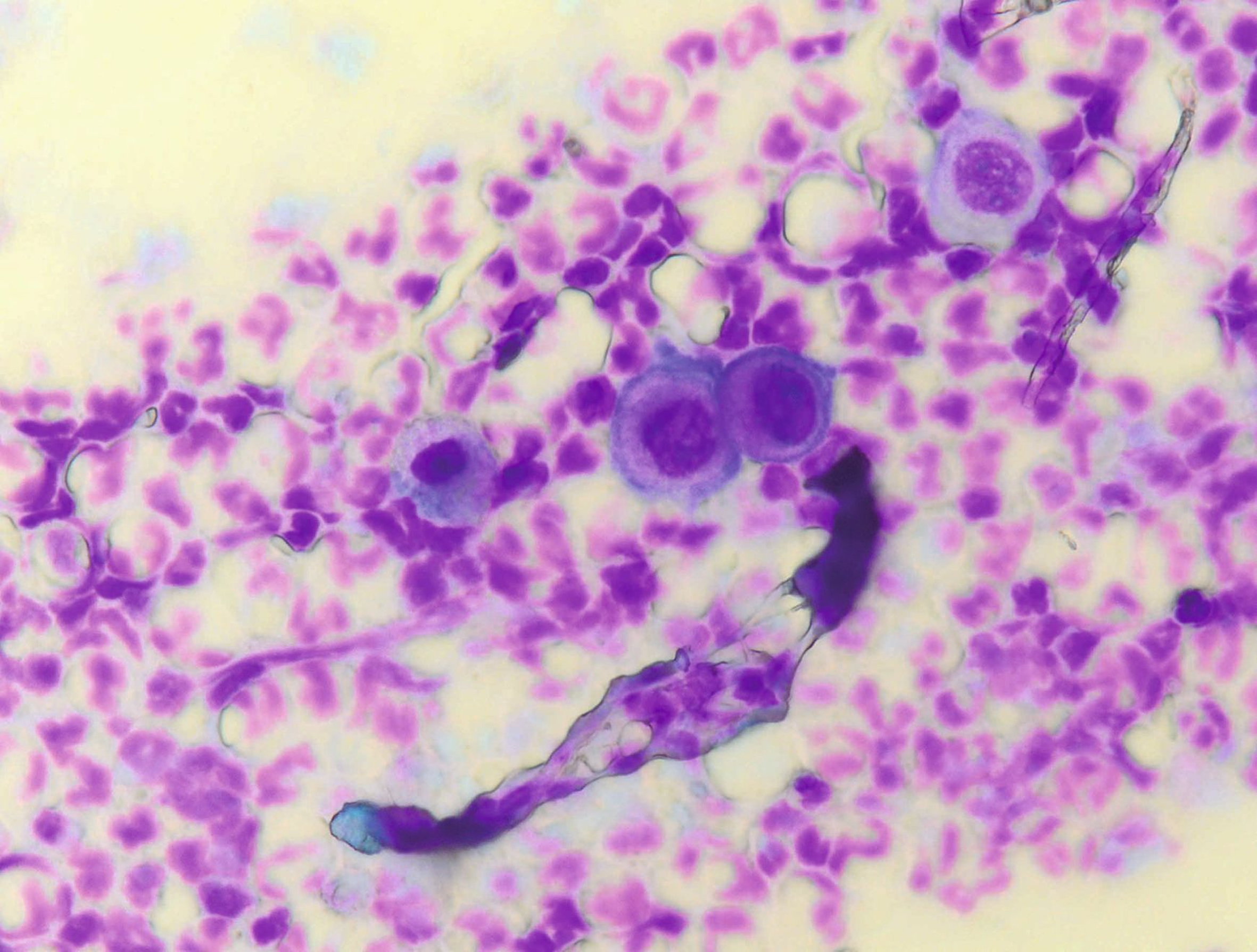 """Cytology in feline pemphigus foliaceus; note the rounded (acantholytic) keratinocytes in small clusters (like """"fried eggs"""") surrounded by neutrophils."""