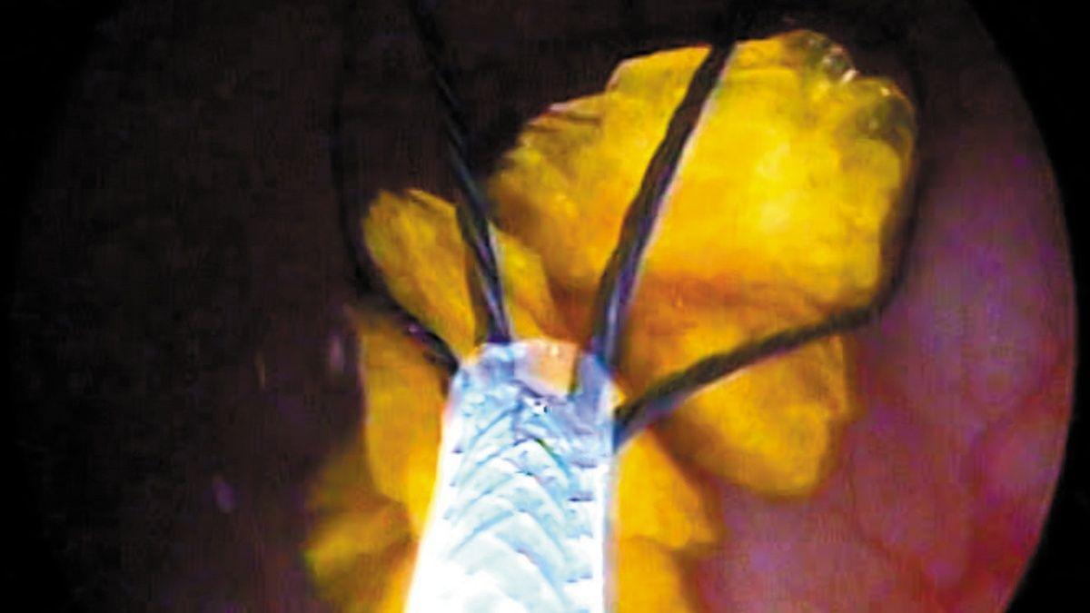 Minimally invasive bladder urolith removal