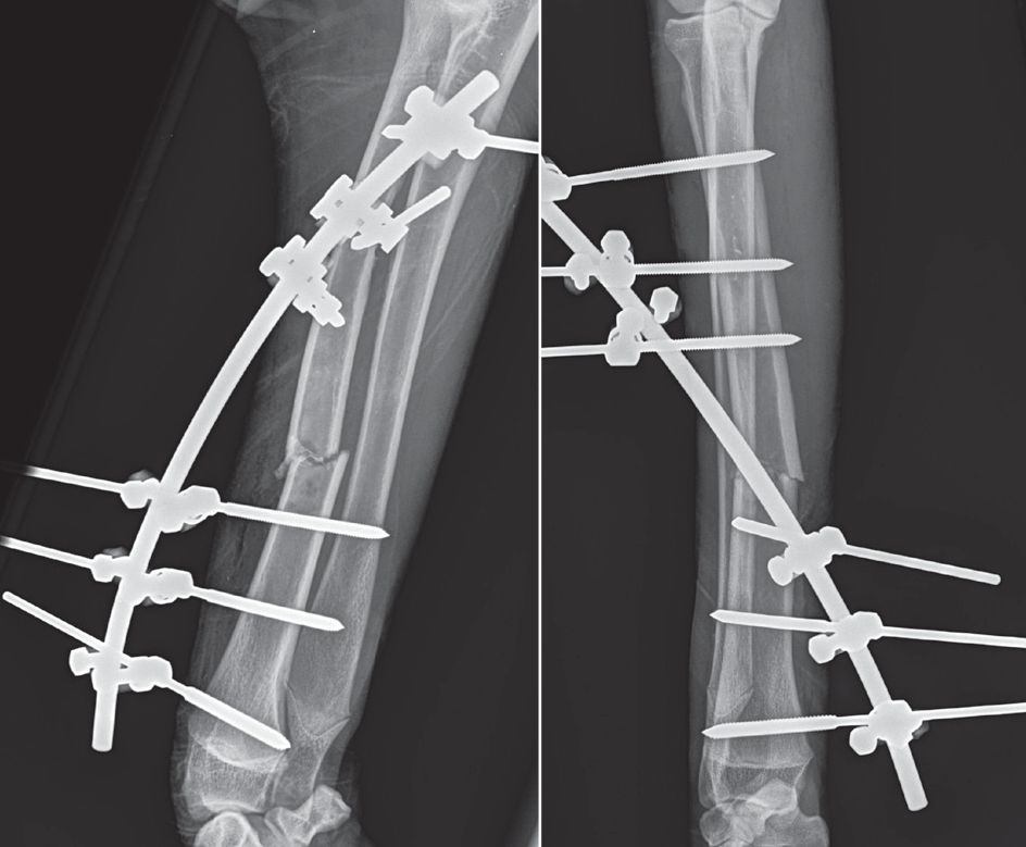 Post-operative mediolateral and craniocaudal radiographs of an open radius fracture with an applied external skeletal fixator. Such devices are excellent choices for open fracture fixation because they allow care of an open wound while preserving bone blood supply and minimizing soft tissue disruption.
