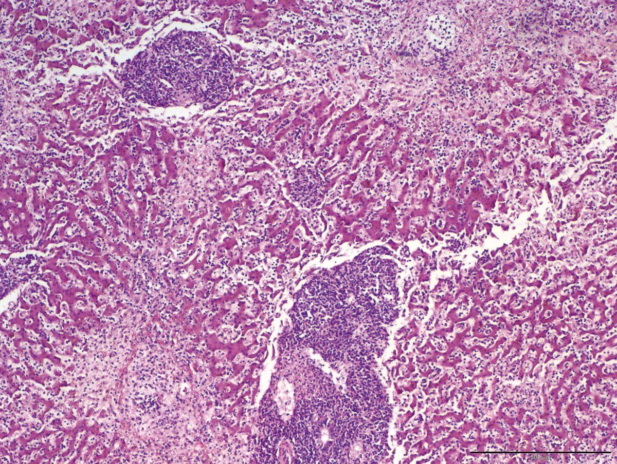 Istopatologia di tessuto epatico colorato con ematossilina-eosina, che mostra densi aggregati di cellule rotonde monomorfiche che si espandono nei tratti portali e nelle aree centrolobulari, oltre a circolare nei sinusoidi e interrompere i cordoni epatici (compatibile con linfoma).