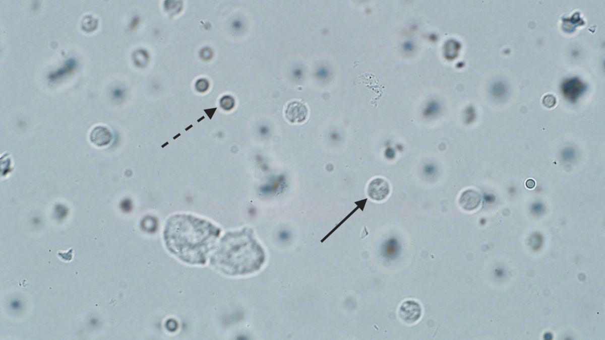 Definizione e trattamento delle infezioni urinarie canine