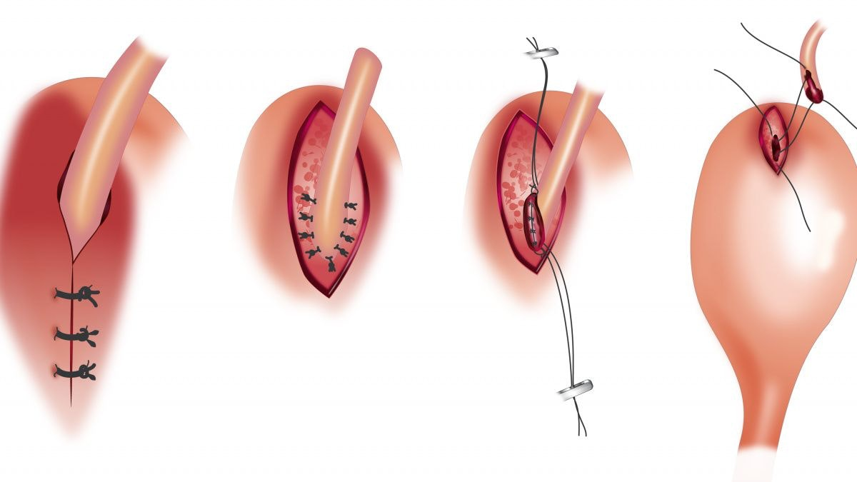 Upper urinary tract urolithiasis