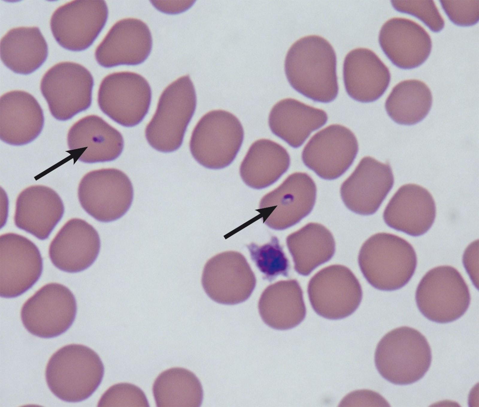 Trofozoítos intracelulares de Babesia felis (flechas)