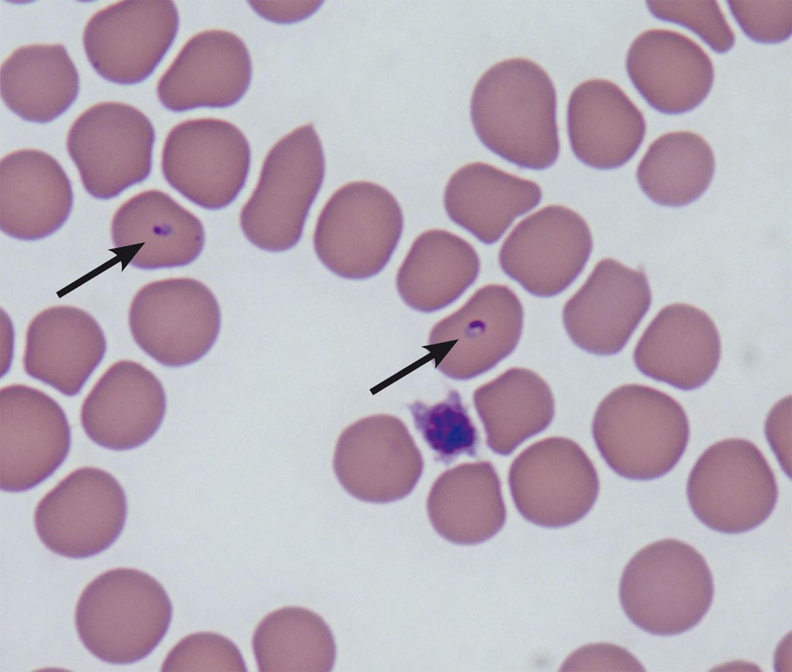Trophozoïtes intracellulaires de Babesia felis