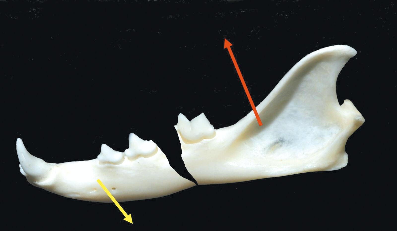 Fraktur des Corpus mandibulae. Gelber Pfeil = Zugrichtung der Kieferöffner, roter Pfeil = Zugrichtung der Kieferschließer. Ungünstiger Verlauf der Frakturlinie einer Unterkieferkörperfraktur mit Klaffen des Frakturspaltes.