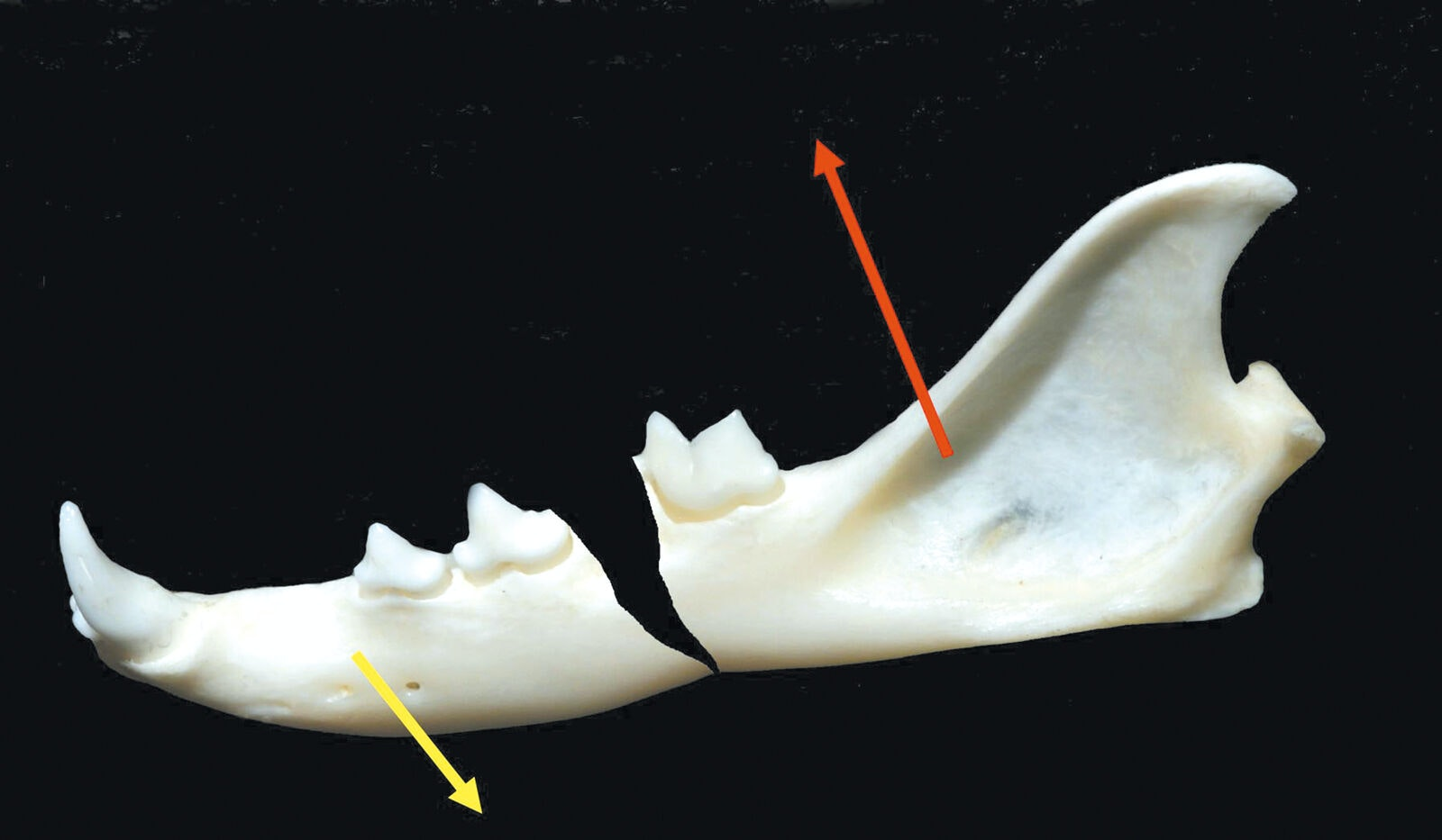 Figure 3. Fracture of the body of the mandible; the yellow arrow shows the direction of pull by muscles that open the jaw; the red arrow shows the direction of pull by muscles that close the jaw. Gaping of the fracture line and poor alignment.