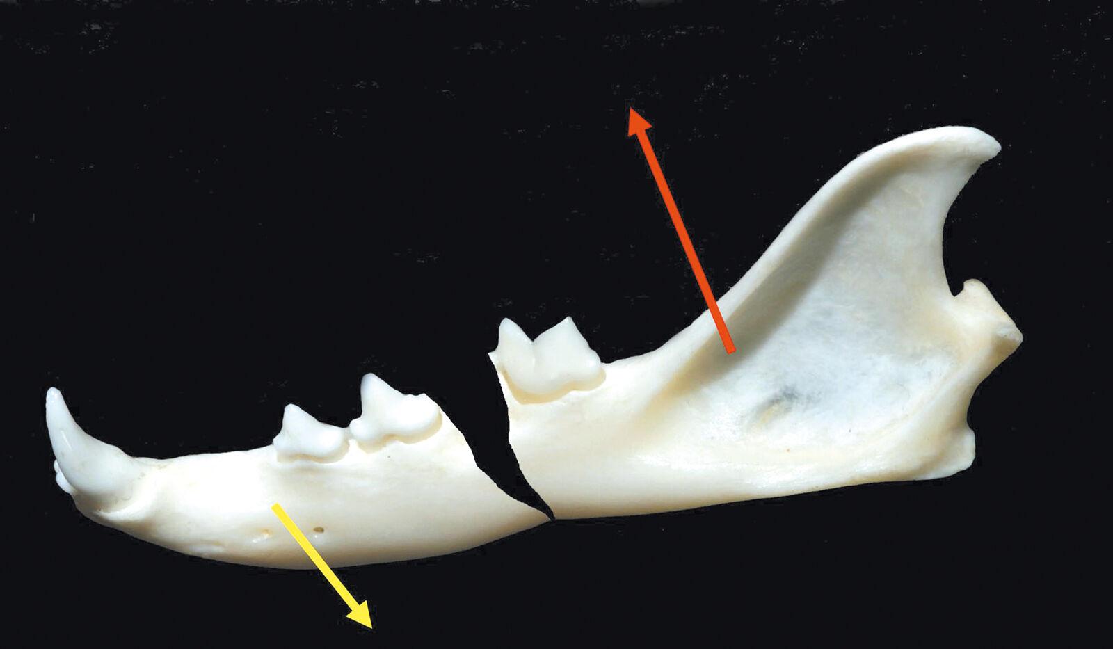 Figure 3. Fracture du corps de la mandibule ; la flèche jaune indique la direction des forces musculaires qui ouvrent la bouche ; la flèche rouge indique la direction des forces musculaires qui ferment la bouche. Ecartement de la fracture et défaut d'alignement.