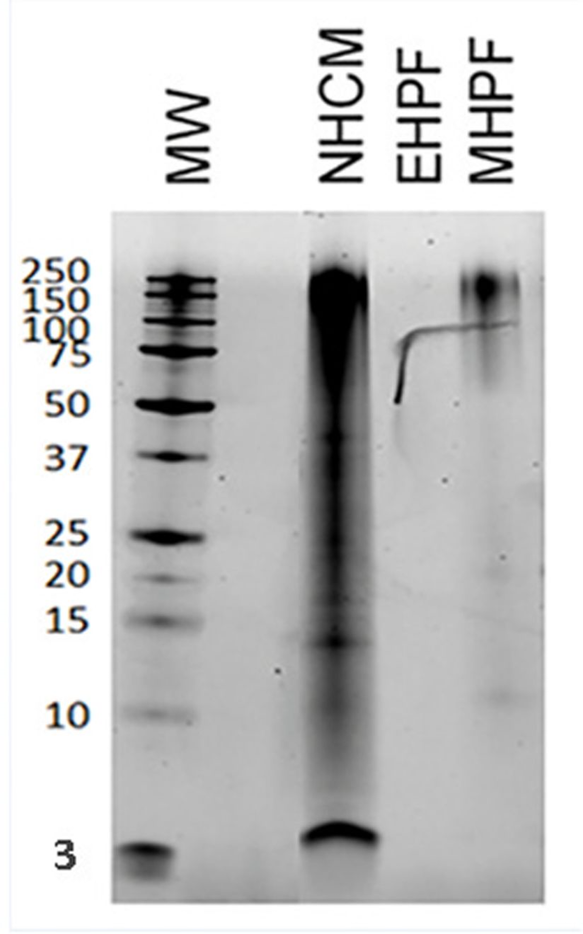 Figure 1. Protein electrophoresis on three different poultry-based raw materials, including the extensively hydrolyzed feather protein of Anallergenic diets.  Key:   • NHCM (non-hydrolyzed chicken meal): many proteins of varying molecular weight can be seen • EHPF (Anallergenic extensively hydrolyzed poultry feather): no band seen • MHPF (mildly hydrolyzed poultry feather): residual large proteins are seen • MW: molecular weight in kilodaltons (kDa)  Note: Free amino acids are not visualized by this technique. The artefact on the gel was a deposit before migration.