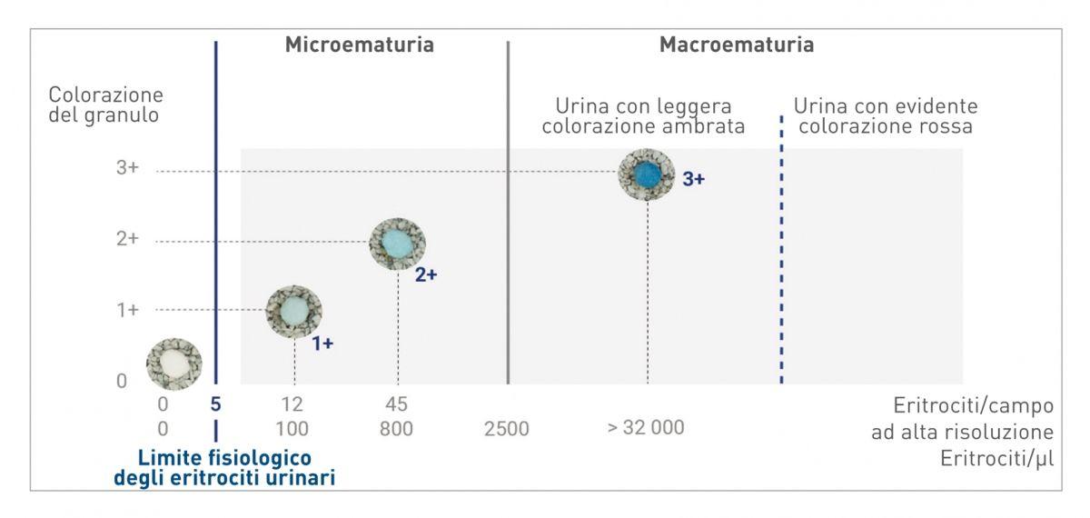 La colorazione dei granuli varia in base alla concentrazione di sangue nell'urina; l'immagine mostra la risposta per un campione di urina con pH 6 e USG pari a 1.026 ( 4 ).
